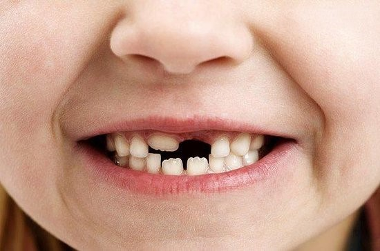 Dream of losing teeth meanings teeth falling out for Fish dream meaning pregnancy